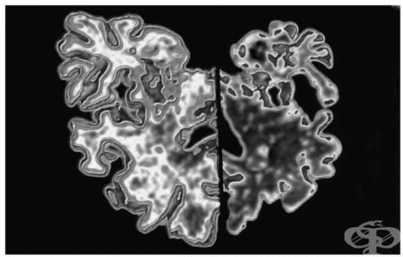 Деменция при болестта на Creutzfeldt-Jacob (A81.0+) МКБ F02.1 - изображение