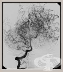 Болест Moyamoya МКБ I67.5 - изображение