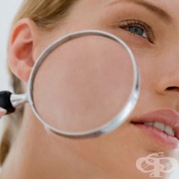 Болести на кожата и подкожната тъкан МКБ L00-L99 - изображение