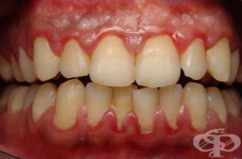 Болест на пародонта, неуточнена МКБ K05.6 - изображение
