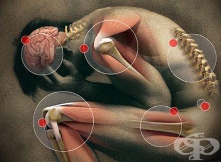 Болка, неуточнена МКБ R52.9 - изображение