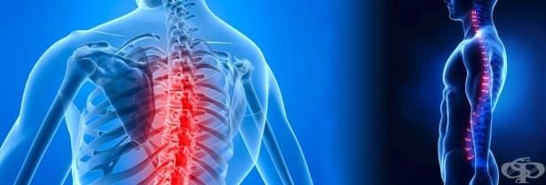 Болка в гръдния отдел на гръбначния стълб МКБ M54.6 - изображение