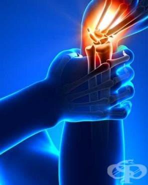 Болка в крайник МКБ M79.6 - изображение
