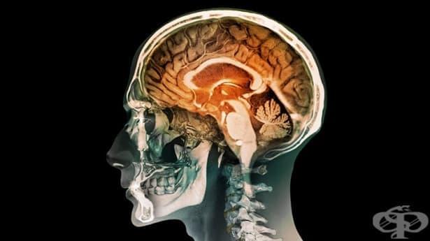 Органично кататонно разстройство МКБ F06.1 - изображение