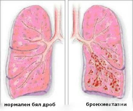 Бронхиектатична болест МКБ J47 - изображение