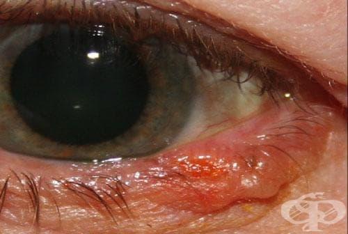 Карцином in situ на кожата на клепача, включително ръбовете му МКБ D04.1 - изображение