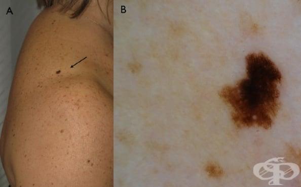 Меланом in situ на горен крайник, включително раменния пояс МКБ D03.6 - изображение