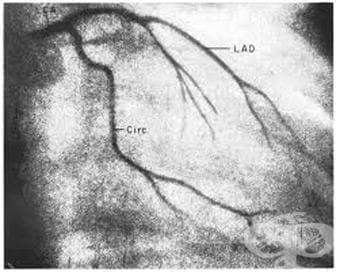 Чиста хиперглицеридемия МКБ E78.1 - изображение