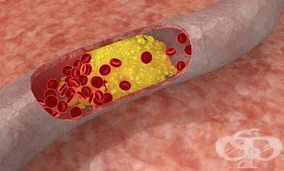 Антихиперлипидемични и антиатеросклеротични средства МКБ Y52.6 - изображение
