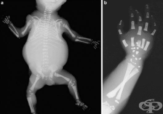 Chondrodysplasia punctata МКБ Q77.3 - изображение