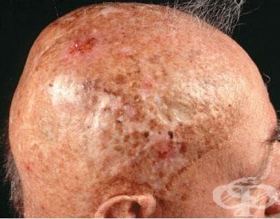 Хроничен радиационен дерматит МКБ L58.1 - изображение