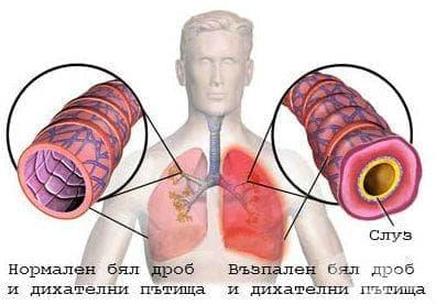 Химично изгаряне на ларинкса, трахеята и белия дроб МКБ T27.5 - изображение