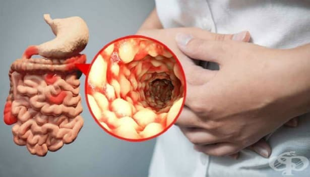 Болест на Crohn [регионарен ентерит] МКБ K50 - изображение
