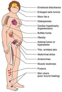 Синдром на Cushing МКБ E24 - изображение
