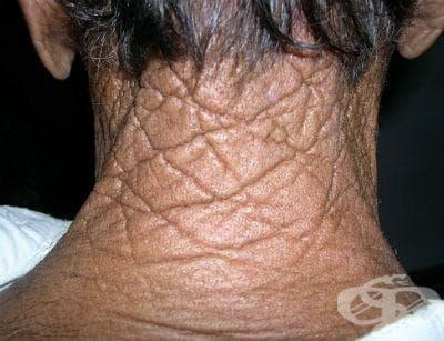 Cutis rhomboidalis nuchae МКБ L57.2 - изображение