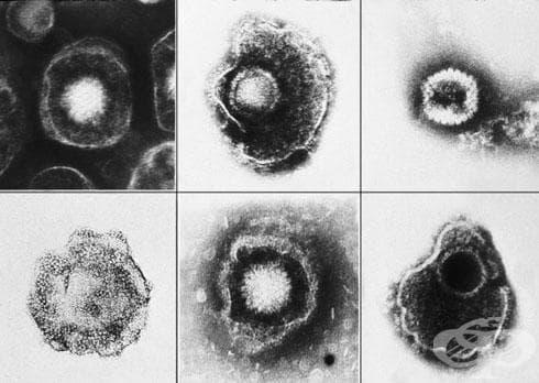 Вродена цитомегалвирусна инфекция МКБ P35.1 - изображение