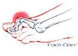 Деформации тип пръст-чукче на пръстите на крак (придобити) МКБ M20.4 - изображение