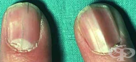 Други вродени аномалии на ноктите МКБ Q84.6 - изображение