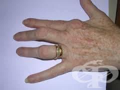 Деформация на пръст(-и) МКБ M20.0 - изображение
