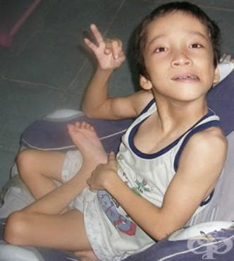 Детска церебрална парализа и други паралитични синдроми МКБ G80-G83 - изображение