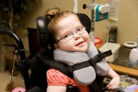 Детска церебрална парализа, неуточнена МКБ G80.9 - изображение