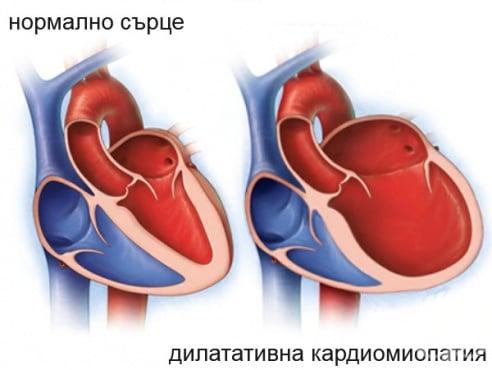 Дилатативна кардиомиопатия МКБ I42.0 - изображение