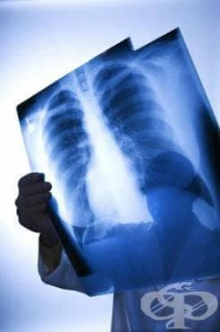 Изкълчвания, навяхвания и разтягания на гръдния кош, седалището и таза МКБ T03.1 - изображение