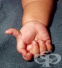 Добавъчен пръст (пръсти) на ръка МКБ Q69.0 - изображение