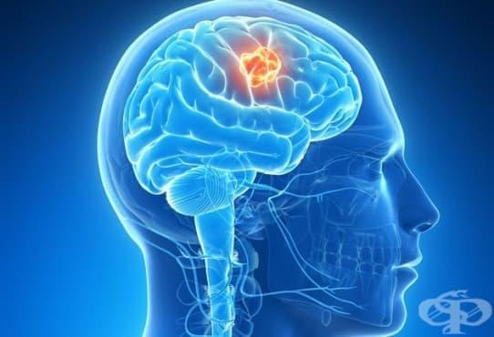 Доброкачествено новообразувание на главния мозък и други части на централната нервна система МКБ D33 - изображение