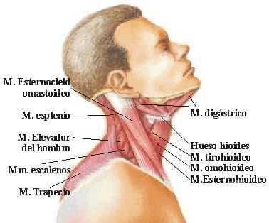 Крива шия [torticollis] МКБ M43.6 - изображение