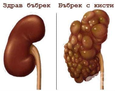 Други форми на кистозна болест на бъбреците МКБ Q61.8 - изображение
