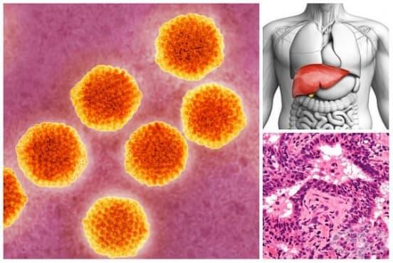 Друг хроничен вирусен хепатит МКБ B18.8 - изображение