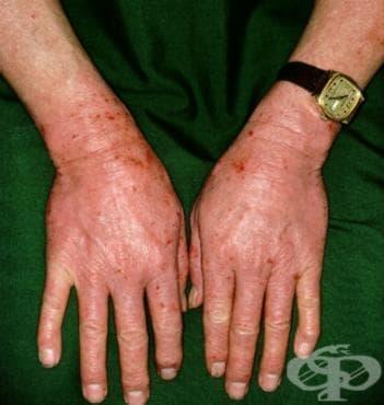 Лекарствена фотоалергична реакция МКБ L56.1 - изображение