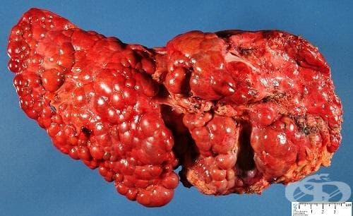 Друга и неуточнена цироза на черния дроб МКБ K74.6 - изображение