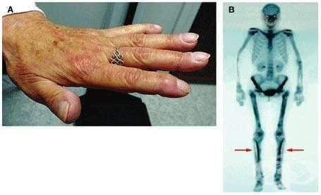 Друга хипертрофична остеоартропатия МКБ M89.4 - изображение
