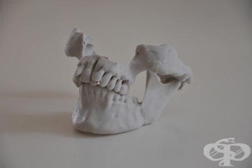 Други болести на челюстите МКБ K10 - изображение