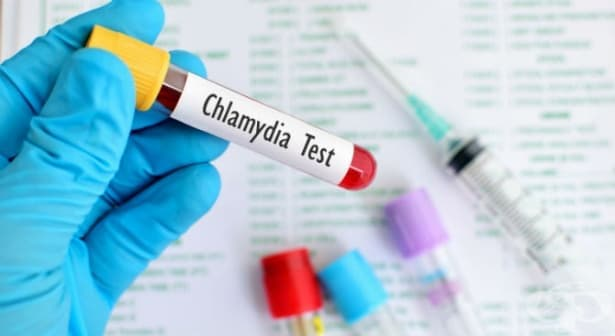 Други хламидийни болести, предавани по полов път МКБ A56 - изображение