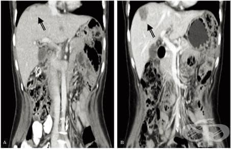 Други саркоми на черния дроб МКБ C22.4 - изображение