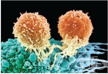 Други уточнени нарушения, включващи имунния механизъм, некласифицирани другаде МКБ D89.8 - изображение