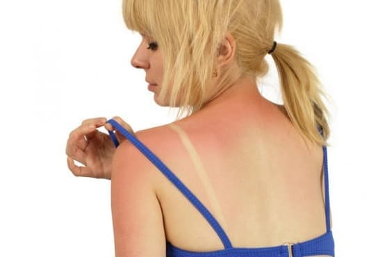 Други видове слънчево изгаряне МКБ L55.8 - изображение