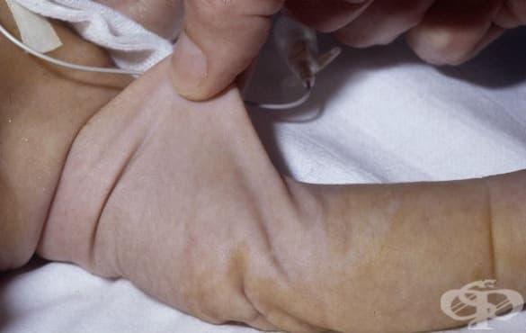 Други уточнени вродени аномалии на кожата МКБ Q82.8 - изображение