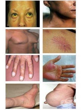 Други болести на черния дроб МКБ K76 - изображение