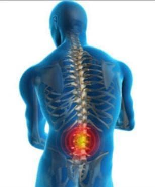 Други болести на гръбначния мозък МКБ G95 - изображение