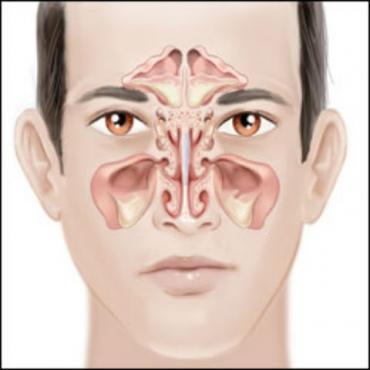 Други болести на носа и носните  синуси МКБ J34 - изображение