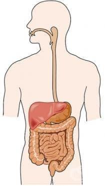 Други болести на храносмилателните органи МКБ K92 - изображение