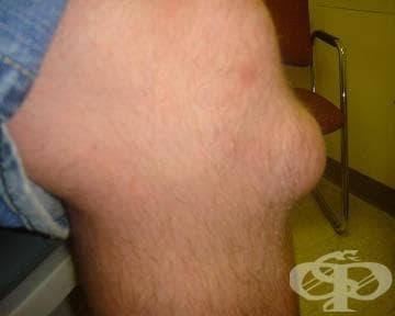Други бурсити на колянната става МКБ M70.5 - изображение