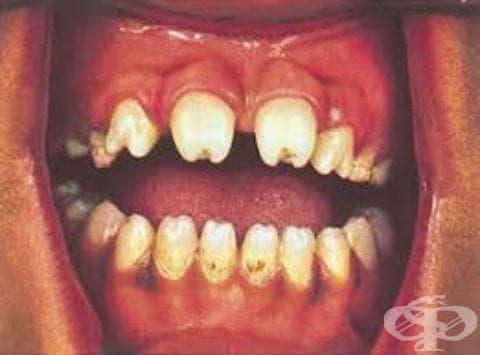 Други форми на късен вроден сифилис със симптоми МКБ A50.5 - изображение