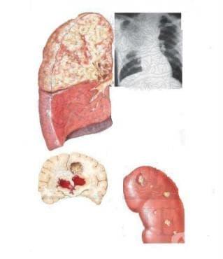 Други форми на нокардиоза МКБ A43.8 - изображение