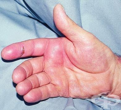 Други инфекциозни (тено)синовити МКБ M65.1 - изображение