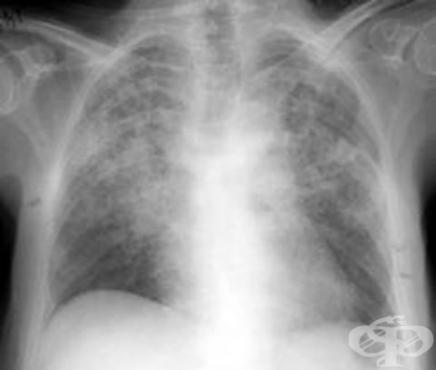 Други интерстициални белодробни болести с фиброза МКБ J84.1 - изображение
